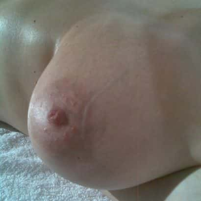 sunbathing big areolas