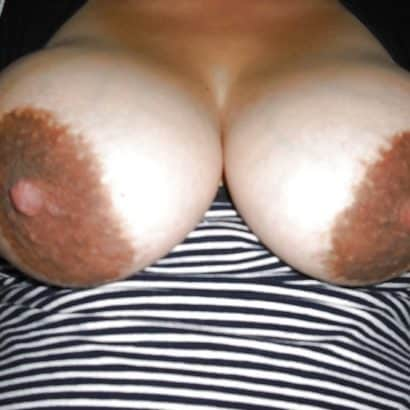 dark Large areolas